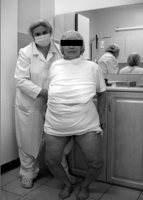 До операції