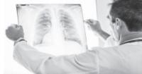 Рак легень – Про «убивцю №1» в Україні